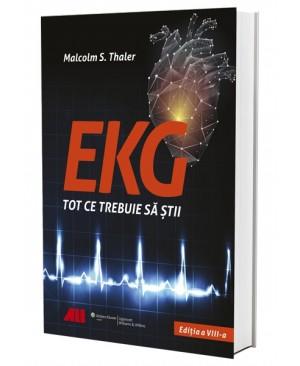EKG - Tot ce trebuie să știi